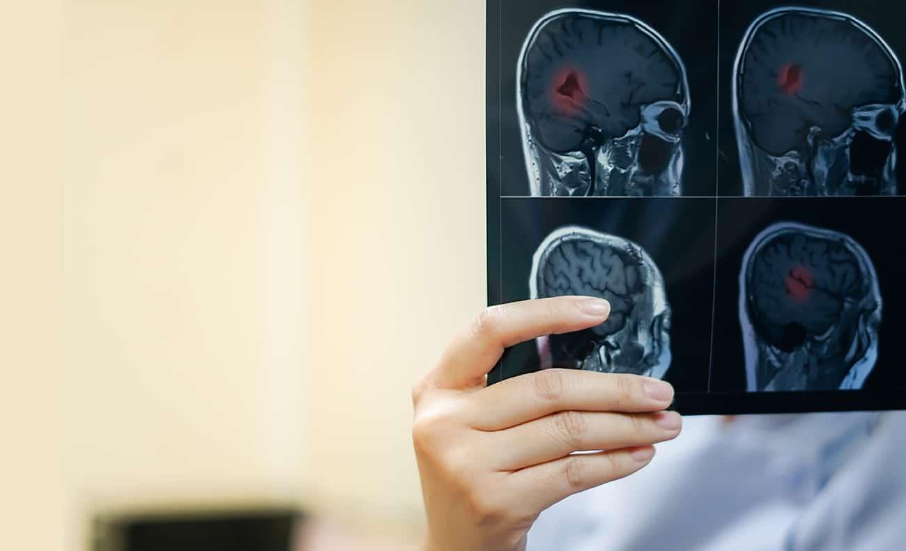 Destacada Atrofia Cerebral
